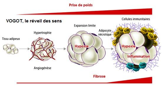 Fibrose et steatose