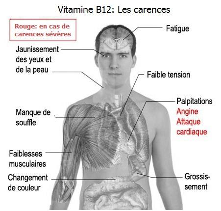 Carences en vitamine B12